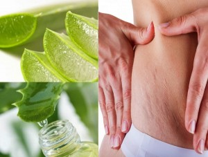 Aloe-vera-to-remove-stretch-marks