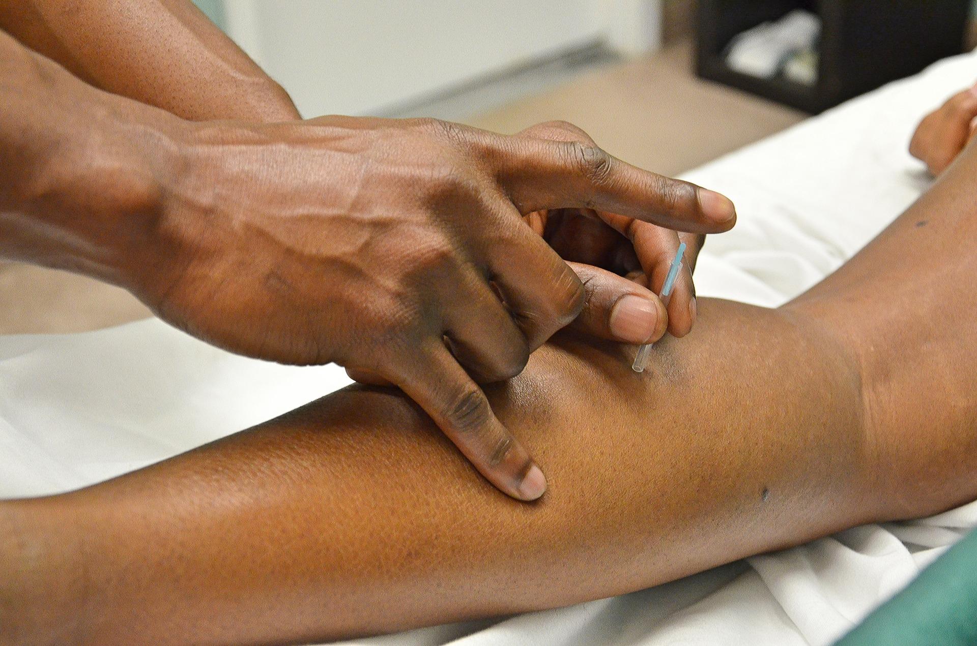 kineska medicina-akupunktura