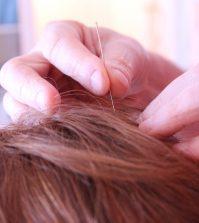 Akupunktura migrene