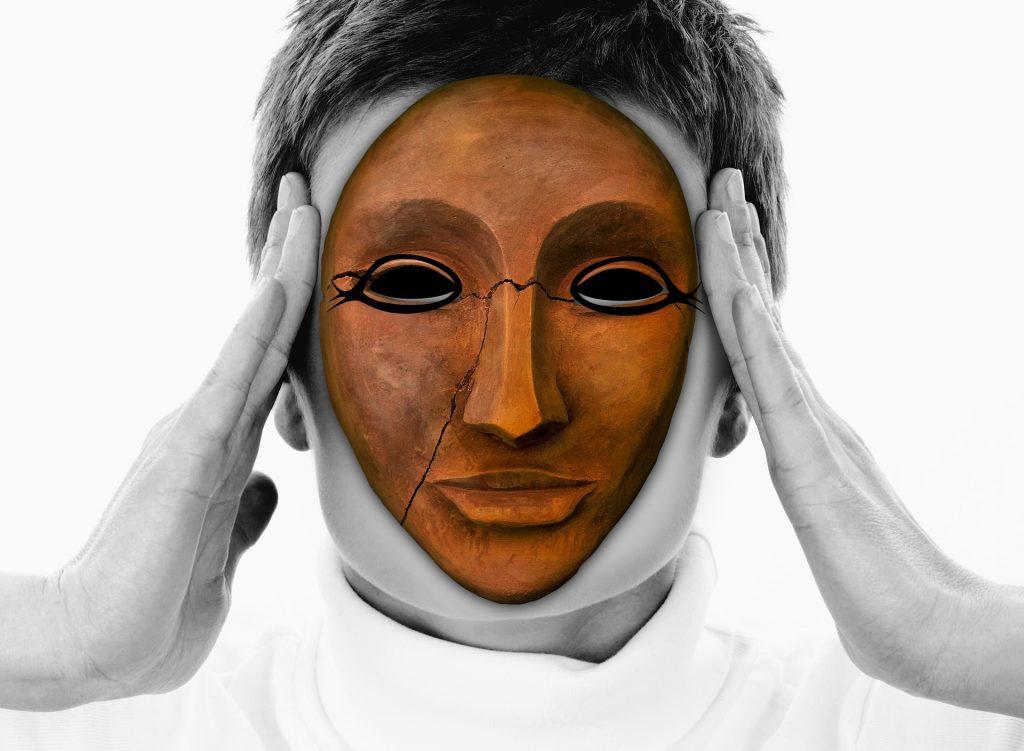 akupunktura i migrena